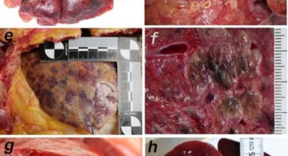 Covid-19 mapping reveals organ distribution and tissue damage
