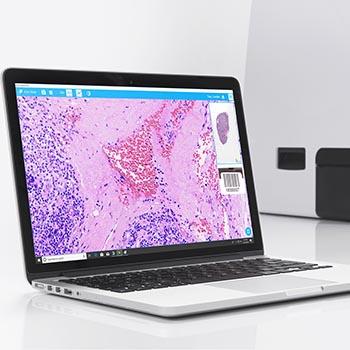 EasyScan One Motic Digital Pathology