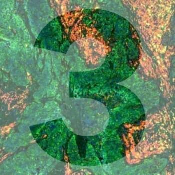 3DFL3 generic product image pathology news