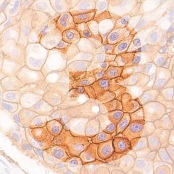 3Dbf generic product image pathology news