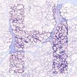 H generic product image pathology news