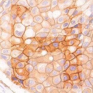 H Her2 generic product image pathology news