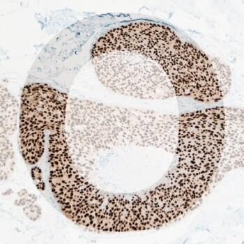 O ER generic product image pathology news
