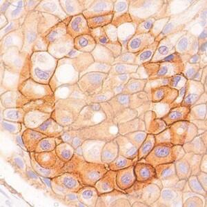 O IHC1 generic product image pathology news