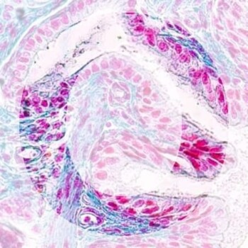 O IHC2 generic product image pathology news