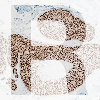 R IHC generic product image pathology news