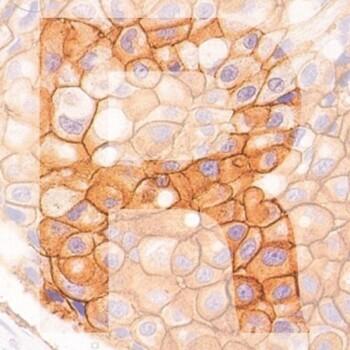 R Her2 generic product image pathology news