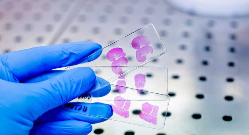 Cooperation to accelerate adoption of AI-powered digital pathology