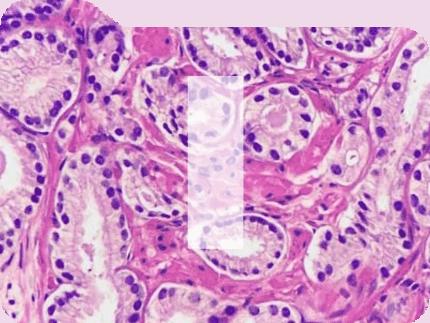 he folder pathology news image management generic product image
