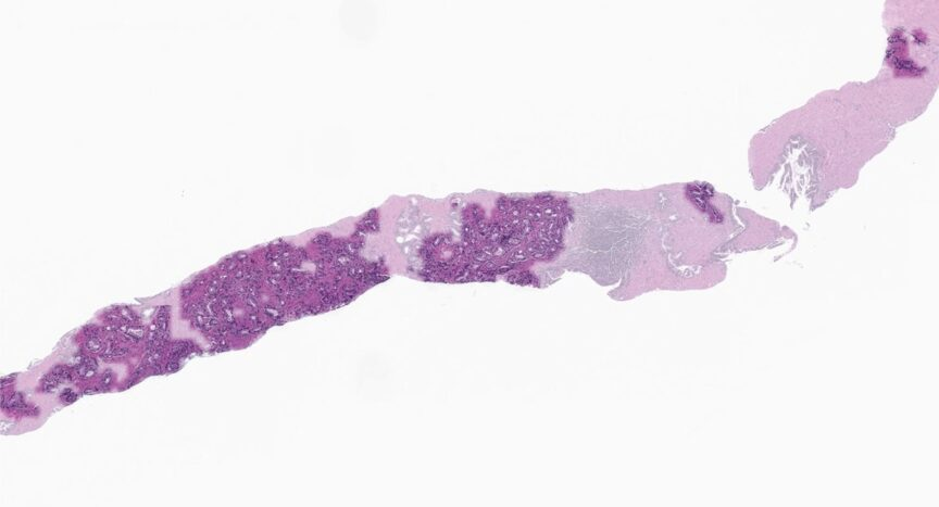 Epredia And Paige Announce Global Commercial Distribution Agreement For Digital Pathology Software
