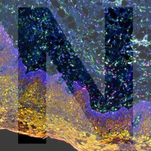 nanostring digital spatial profiler generic image