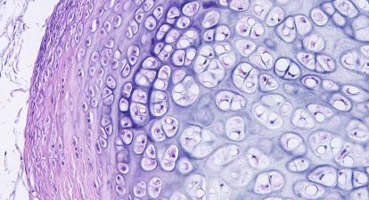 hematoxylin and eosin tissue