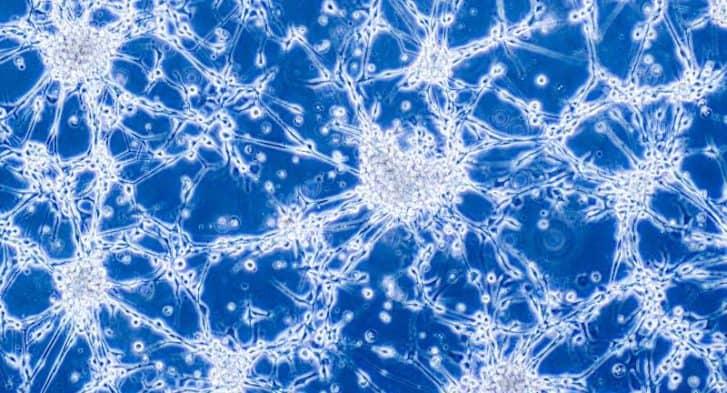 Glioblastoma-Cells