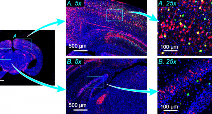 Imaging a mouse brain slice