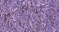 Proscia - Digital Pathology