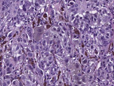 Proscia Release Image – cropped 1600 x 800 – Digital Pathology