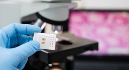 Digital Pathology - Tissue Histology